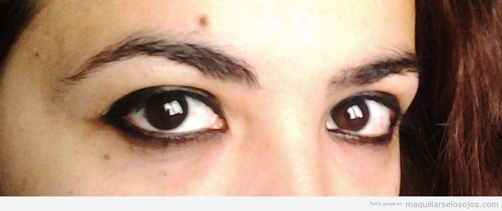 Por qué hay unos hinchazones bajo los ojos y en los pies