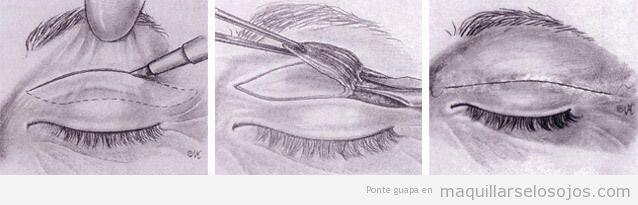 Blefaroplastia superior