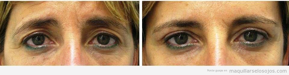 Blefaroplastia superior y levantamiento cejas