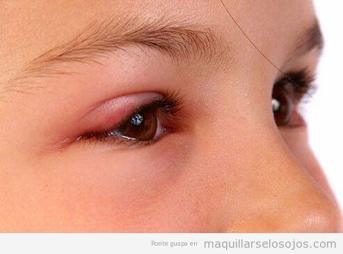Me puedo maquillar los ojos con conjuntivitis