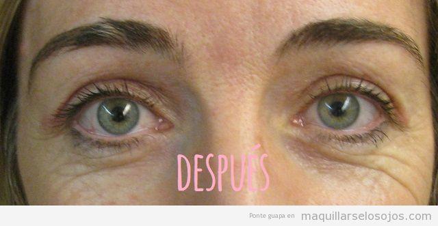 Antes y después blefaroplasrtia cirugía parpado superior