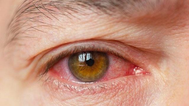 Síntomas de los ojos secos